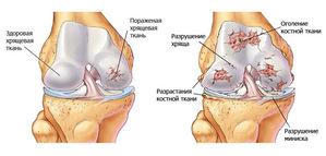 Артроз плечевого и коленного суставов