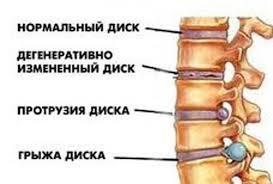 Остеохондроз хребта