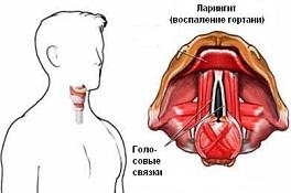 Хронический ларингит. Медицинская конференция, г. Киев
