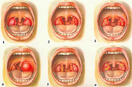 Вылечи ангину без антибиотиков (журнал «Твоё здоровье. Единственная»)